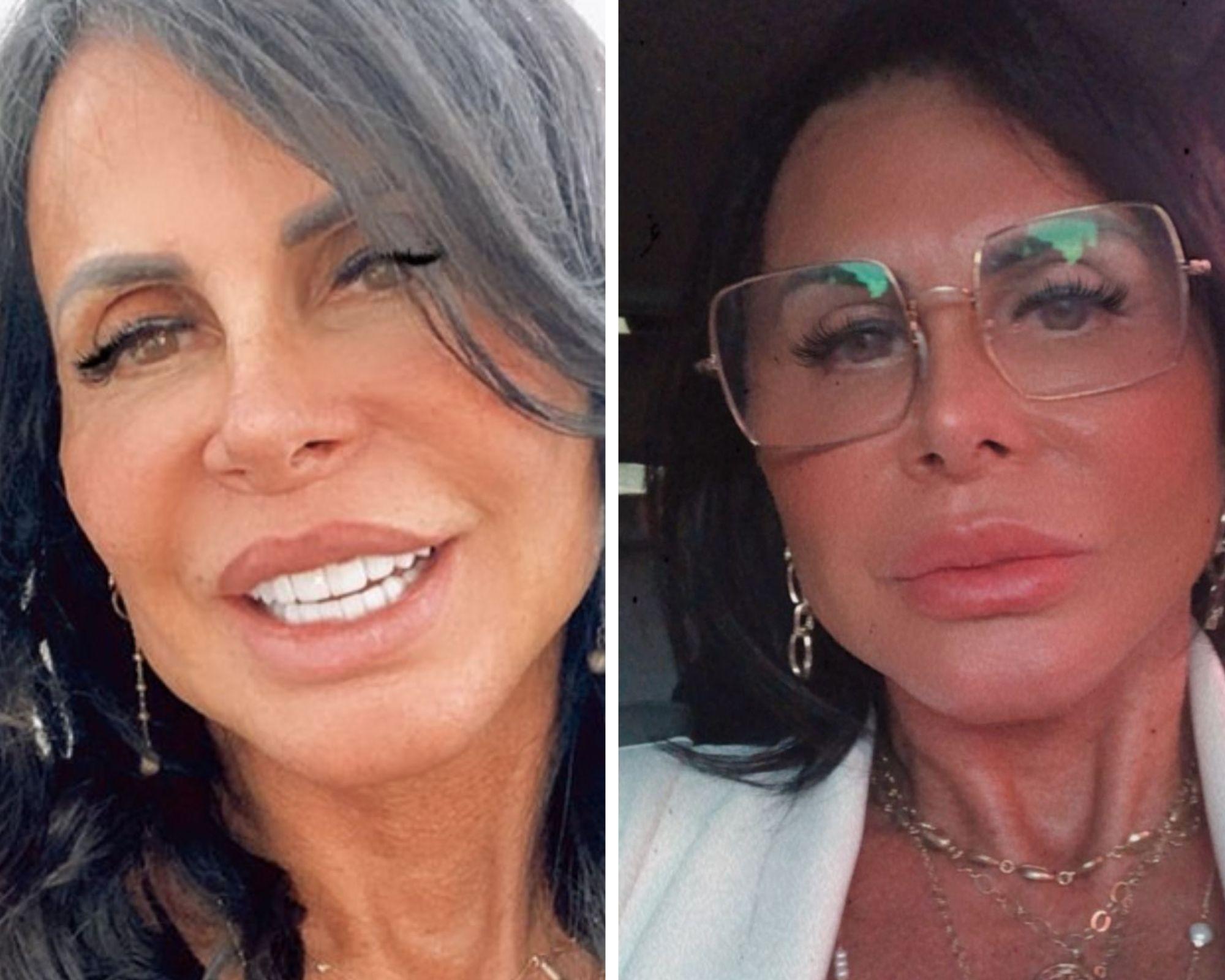 Antes e depois da plástica (Foto: Reprodução/Instagram)