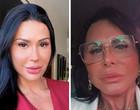 Gretchen se surpreende com resultado de nova cirurgia plástica