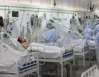 Covid: Brasil registra 2.202 mortes em 24h e ultrapassa 420 mil
