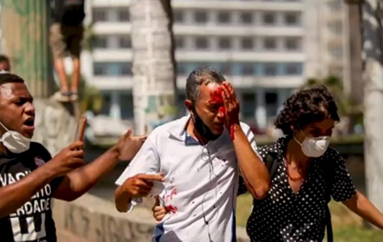Fotógrafo que tomou tiro de borracha no olho em 2000 - Foto: Reprodução/TV Globo