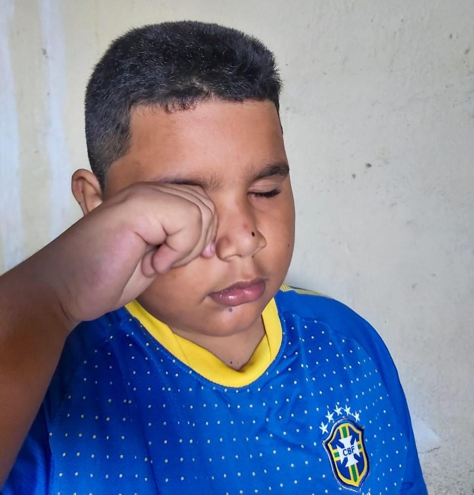 Hábito de coçar os olhos pode provocar a forma grave da ceratocone