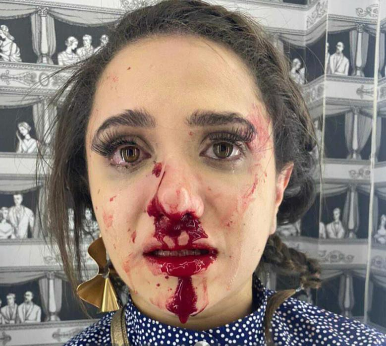 Imagem do rosto da blogueira após agressão vazaram nas redes sociais
