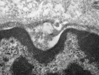 Estudo conduzido na Faculdade de Medicina da USP sugere que tecidos especializados na produção e secreção de saliva servem de reservatórios para o SARS-CoV-2, contribuindo para ampliar o potencial infeccioso do vírus (imagem de microscopia eletrônica mostra o novo coronavírus no interior das glândulas salivares; crédito: Bruno Matuck/USP)