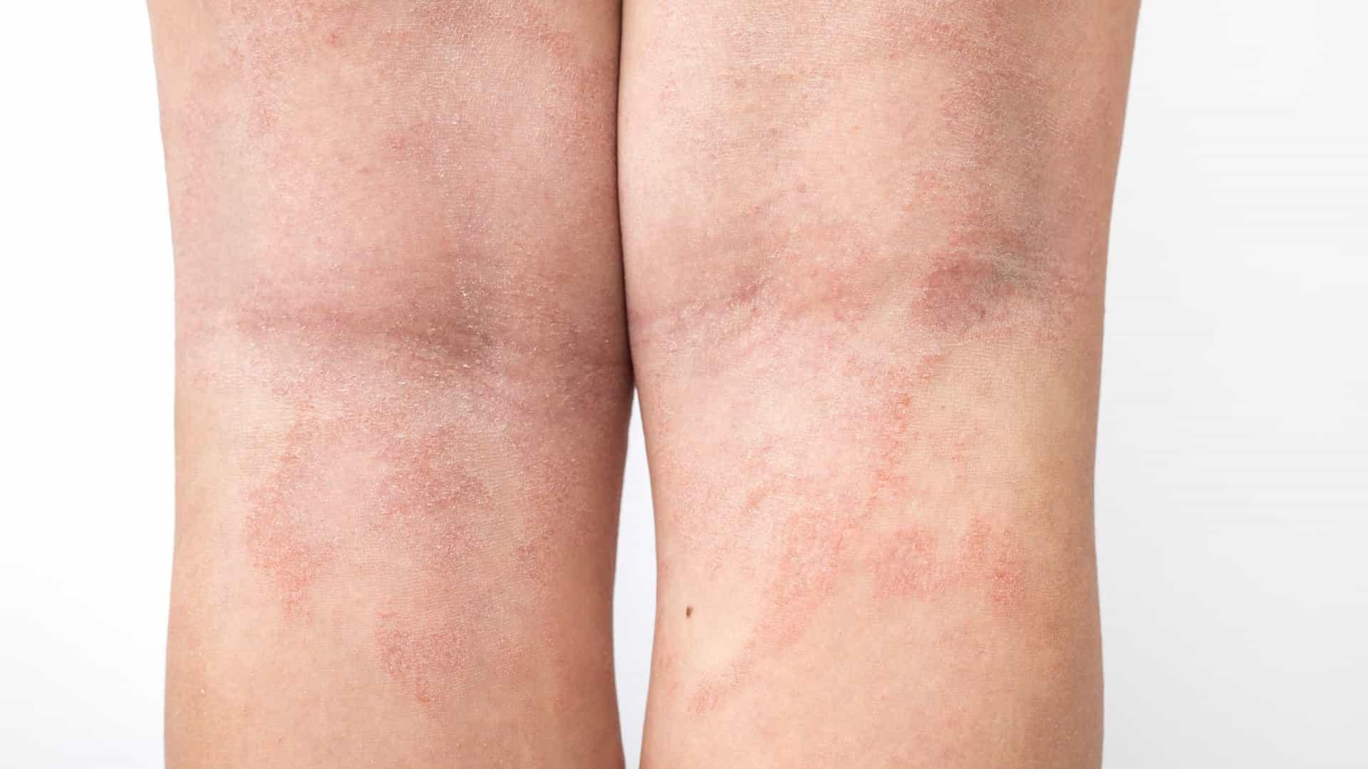 Problemas na pele pode ser indicativo de Covid-19 (Foto: Shutterstock)