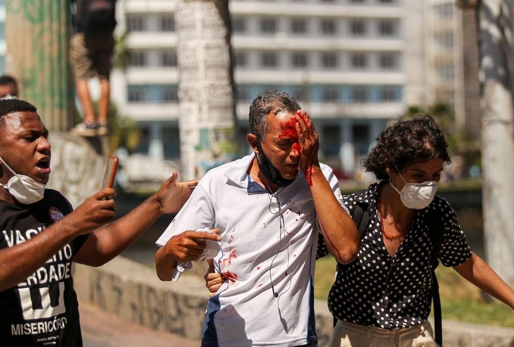 Daniel da Silva perdeu o olho após ser atingido por bala de borracha atirada pela PM em protesto contra Bolsonaro — Foto: Hugo Muniz