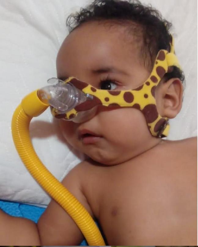 Bebê piauiense joão Miguel precisa de remédio mais caro do mundo- Foto: (@amejoaomiguel2020)