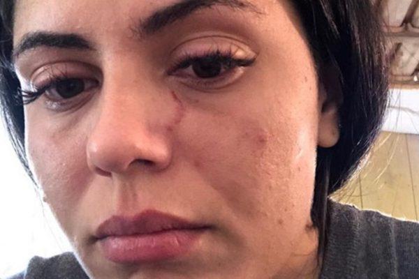 Jéssika da Silva Camargo divulgou nas redes sociais hematomas provocados por agressões