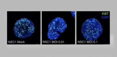 Seminário on-line organizado pela FAPESP reuniu pesquisadores do Brasil e da Alemanha. Resultados dão pistas de como o SARS-CoV-2 chega ao sistema nervoso central e quais células são mais afetadas (experimentos realizados em células nervosas por pesquisadores do Instituto D'Or e da UFRJ; reprodução)