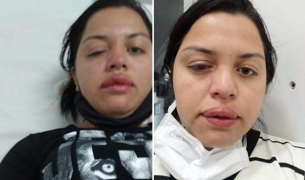 Faxineira foi atacada com ácido pelo ex-patrão de 70 anos. (Foto: Arquivo pessoal)