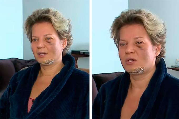 Joice Hasselmann acordou com fraturas e hematomas pelo corpo (Foto: Reprodução SBT/Divulgação)