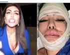 Harmonização deu errado em mulher que atacou policiais
