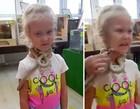 Menina de 5 anos tem pele arrancada do rosto após ser picada por cobra