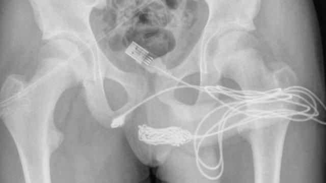Adolescente foi parar no hospital após inserir cabo/reprodução