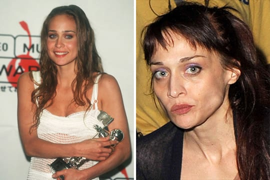 Antes e depois de celebridades após uso das drogas; imagens fortes - Imagem 7