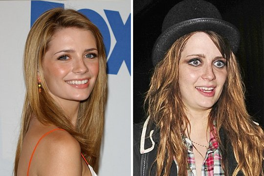 Antes e depois de celebridades após uso das drogas; imagens fortes - Imagem 11