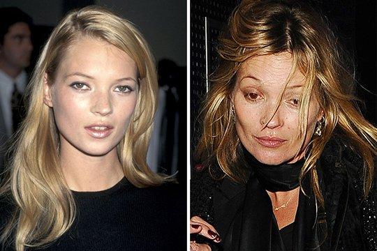 Antes e depois de celebridades após uso das drogas; imagens fortes - Imagem 8