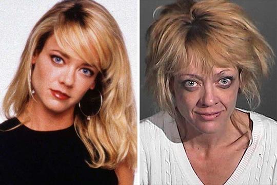 Antes e depois de celebridades após uso das drogas; imagens fortes - Imagem 9