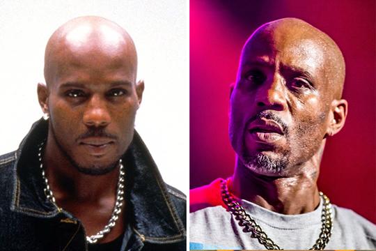 Antes e depois de celebridades após uso das drogas; imagens fortes - Imagem 6