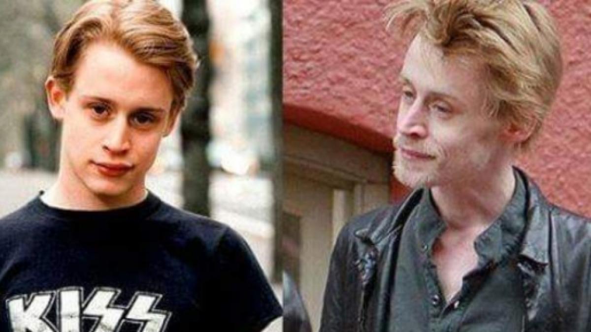 Antes e depois de celebridades após uso das drogas; imagens fortes - Imagem 10