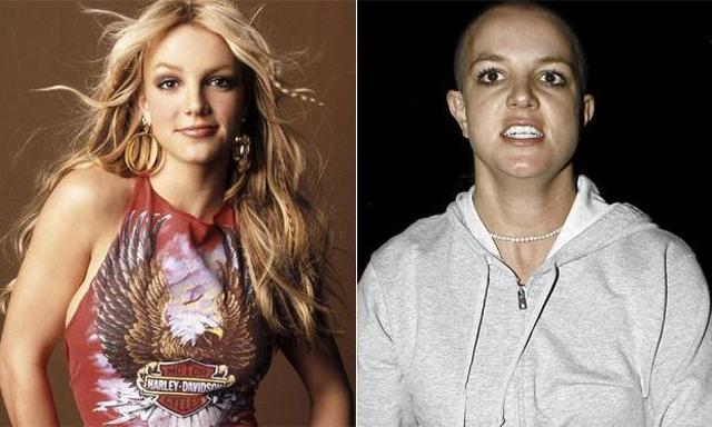 Antes e depois de celebridades após uso das drogas; imagens fortes - Imagem 5