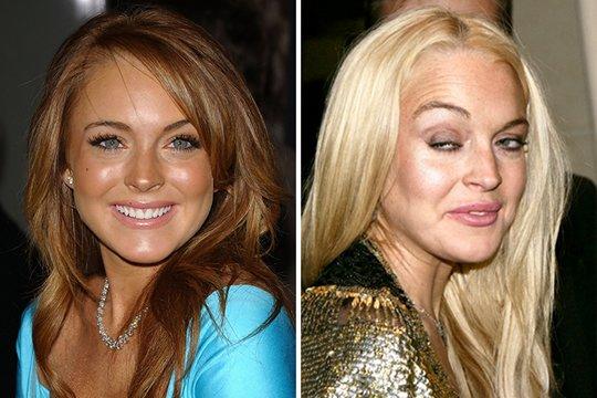 Antes e depois de celebridades após uso das drogas; imagens fortes - Imagem 2