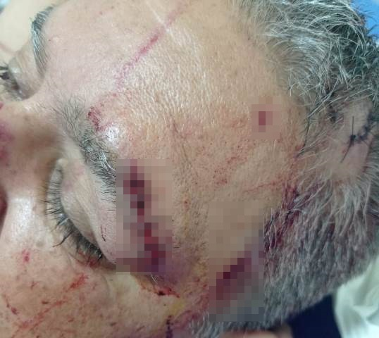 João Batista ficou com diversas lesões pelo corpo