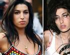 Antes e depois de celebridades após uso das drogas; imagens fortes