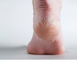 Saiba como evitar e tratar pés rachados ou ressecados