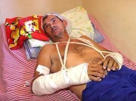Homem teve os dois braços quebrados durante assalto em Parnaíba