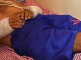 Homem tem braços quebrados durante assalto no Litoral do Piauí