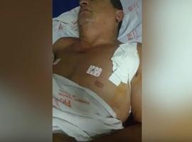 Policial militar baleado durante briga com vizinho pode perder movimento do braço