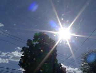 PI: Altas temperaturas representam risco à pele