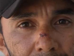 Confusão dentro de hospital acaba com pai de criança ferido no Piauí