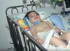 Após dois anos de tratamento contra AME, criança vai para casa
