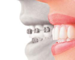 Ortodontia é tema no Quadro Momento Odonto